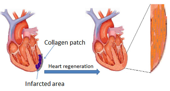 Protein patch for heart muscle growth